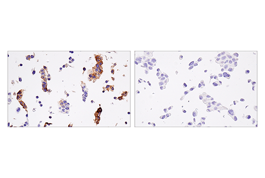 Immunohistochemical analysis of paraffin-embedded JEG-3 cell pellet (left, positive) or LNCaP cell pellet (right, negative) using HLA-G (E8N9C) XP<sup>® </sup>Rabbit mAb.