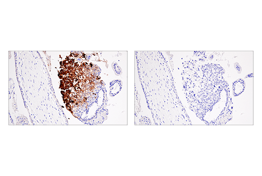 Immunohistochemical analysis of paraffin-embedded human placenta using HLA-G (E8N9C) XP<sup>® </sup>Rabbit mAb (left) compared to concentration matched Rabbit (DA1E) mAb IgG XP<sup>®</sup> Isotype Control #3900 (right).