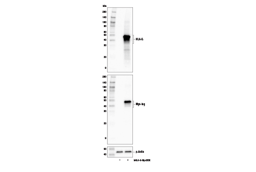 Monoclonal Antibody MHC Class i Protein Complex from Cell