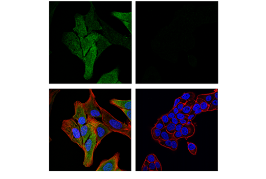 Immunofluorescence Image 1: MAGE-A4 (E7O1U) XP® Rabbit mAb
