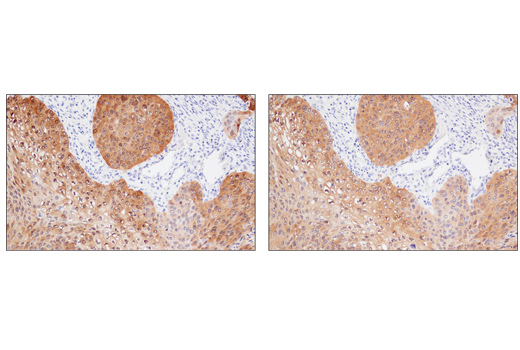 IHC analysis of paraffin-embedded human squamous cell lung carcinoma using MAGE-A4 (E7O1U) (upper) or MAGE-A4 Antibody (lower). These two antibodies detect independent, unique epitopes on human MAGE-A4. The similar staining patterns obtained with both antibodies help to confirm the specificity of the staining.