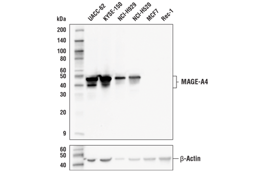 Western Blotting Image 1: MAGE-A4 (E7O1U) XP® Rabbit mAb