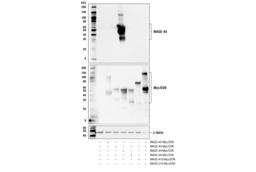 Western Blotting Image 2: MAGE-A4 (E7O1U) XP® Rabbit mAb