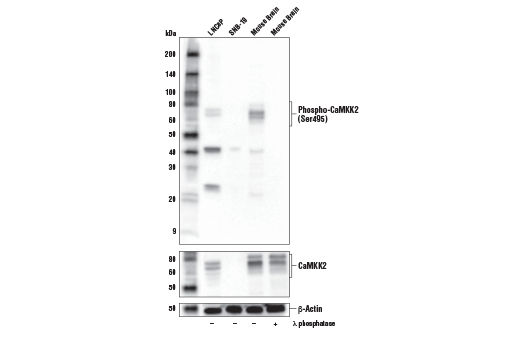Western blot analysis of extracts from LNCaP and SNB-19 cells, and mouse brain, untreated (-) or treated with λ phosphatase (+), using Phospho-CaMKK2 (Ser495) Antibody (upper), CaMKK2 (D8D4D) Rabbit mAb #16810 (middle), and β-Actin (D6A8) Rabbit mAb #8457 (lower).