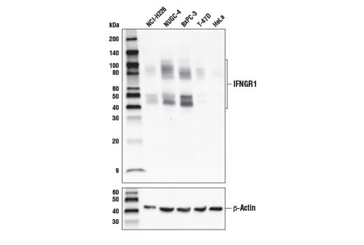 Western blot analysis of extracts from various cell lines with IFNGR1 (E444) Antibody (upper) or β-Actin (D6A8) Rabbit mAb #8457 (lower).