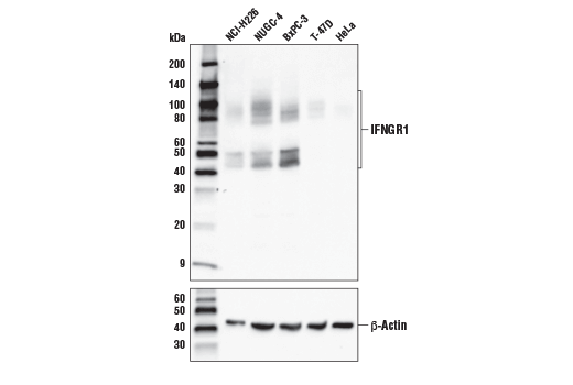 Western blot analysis of extracts from various cell lines with IFNGR1 Antibody (upper) or β-Actin (D6A8) Rabbit mAb #8457 (lower).