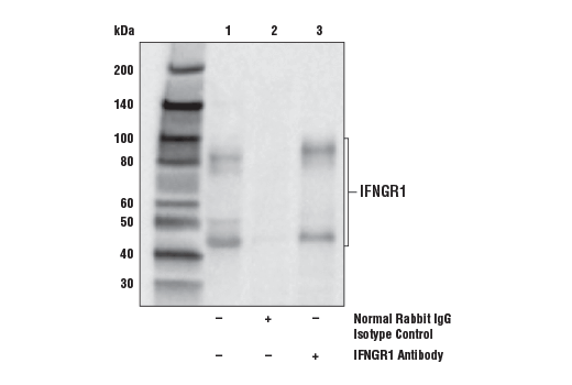 Immunoprecipitation of IFNGR1 from NCI-H226 cell extracts. Lane 1 is 10% input, lane 2 is Normal Rabbit IgG #2729, and lane 3 is IFNGR1 Antibody. Western blot analysis was performed using IFNGR1 Antibody. Mouse Anti-rabbit IgG (Conformation Specific) (L27A9) mAb #3678 was used for detection.