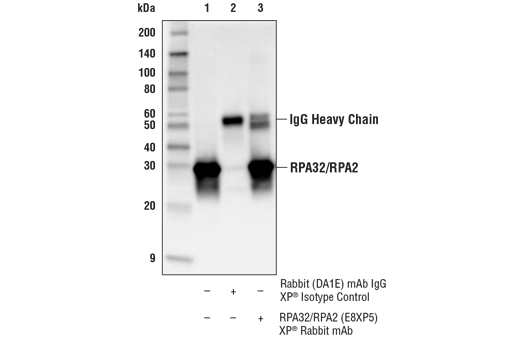 Immunoprecipitation Image 1: RPA32/RPA2 (E8X5P) XP® Rabbit mAb