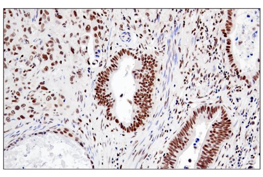 Immunohistochemical analysis of paraffin-embedded human esophageal carcinoma using RPA32/RPA2 (E8X5P) XP<sup>®</sup> Rabbit mAb.