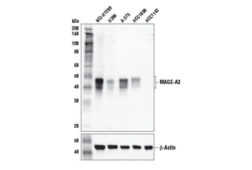 Monoclonal Antibody - MAGE-A3 (E9S4X) Rabbit mAb - Immunoprecipitation, Western Blotting, UniProt ID P43357, Entrez ID 4102 #38896 - Primary Antibodies