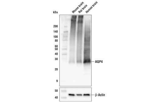 Western blot analysis of mouse, rat, and human brain extracts using AQP4 (D1F8E) XP<sup>®</sup> Rabbit mAb (upper) and β-actin (D6A8) Rabbit mAb #8457 (lower).