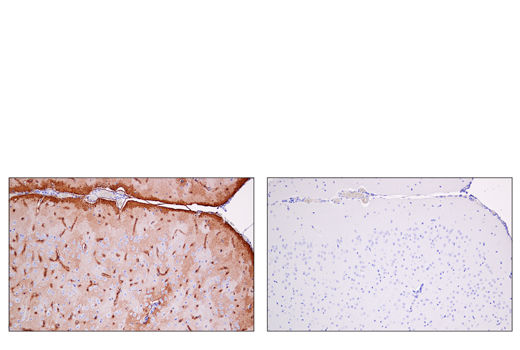 Immunohistochemical analysis of paraffin-embedded mouse brain near third ventricle using AQP4 (D1F8E) XP<sup>®</sup> Rabbit mAb (left) compared to concentration matched Rabbit (DA1E) mAb IgG XP<sup>®</sup> Isotype Control #3900 (right).