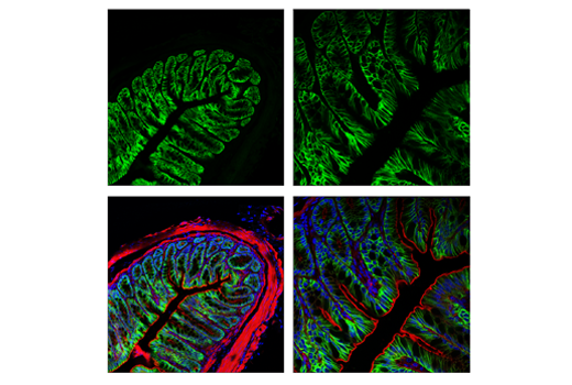 Immunofluorescence Image 3: AQP4 (D1F8E) XP® Rabbit mAb