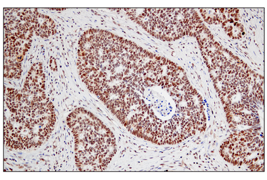 Immunohistochemical analysis of paraffin-embedded human lung adenocarcinoma using JMJD6 (D3O3N) Rabbit mAb.