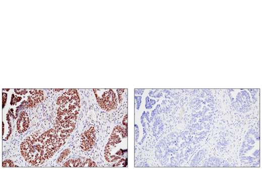 Immunohistochemical analysis of paraffin-embedded human serous papillary carcinoma of the ovary using JMJD6 (D3O3N) Rabbit mAb (left) compared to concentration matched Rabbit (DA1E) mAb IgG XP<sup>®</sup> Isotype Control #3900 (right).