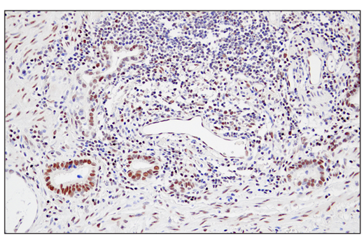 Immunohistochemical analysis of paraffin-embedded human esophageal carcinoma using JMJD6 (D3O3N) Rabbit mAb.