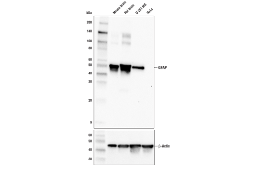 Western blot analysis of extracts from various tissues and cell lines using GFAP (E4L7M) XP<sup>®</sup> Rabbit mAb and β-Actin (D6A8) Rabbit mAb #8457 (lower).