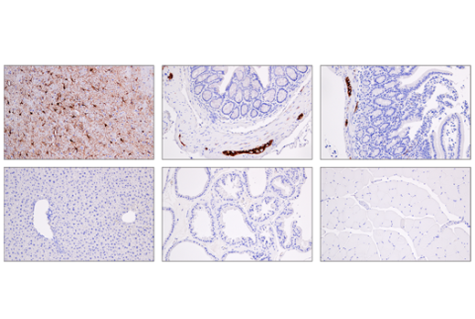 Immunohistochemical analysis of various paraffin-embedded normal mouse tissues: brain cortex (top-left), colon (top-center), small intestine (top-right), liver (bottom-left), prostate (bottom-center) and skeletal muscle (bottom-right) using GFAP (E4L7M) XP<sup>®</sup> Rabbit mAb.
