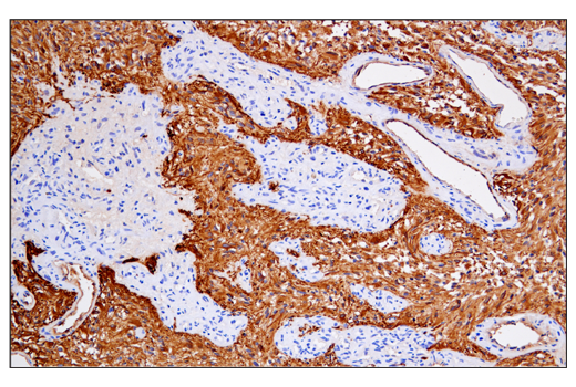 Immunohistochemical analysis of paraffin-embedded human glioblastoma using GFAP (E4L7M) XP<sup>®</sup> Rabbit mAb.
