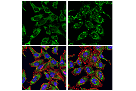 Confocal immunofluorescent analysis of HeLa cells, serum-starved (left) or serum-starved and then treated with sodium arsenite (500 μM, 30 min; right), using G3BP1 Antibody (green). Actin filaments were labeled with DyLight™ 554 Phalloidin #13054 (red). Samples were mounted in ProLong<sup>®</sup> Gold Antifade Reagent with DAPI #8961 (blue).