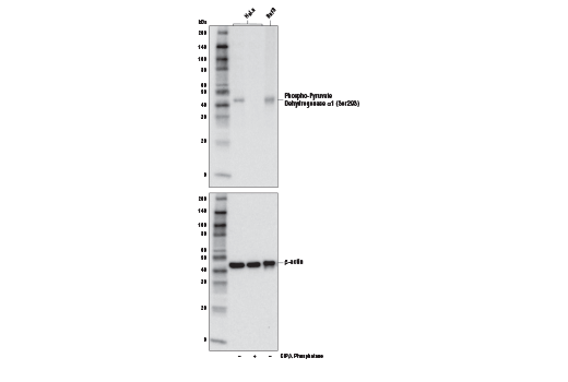 Western blot analysis of extracts from HeLa cells, untreated (-) or treated (+) with calf intestinal alkaline phosphatase (CIP)/λ phosphatase, and BaF3 cells, using Phospho-Pyruvate Dehydrogenase α1 (Ser293) Antibody (upper) or β-Actin (D6A8) Rabbit mAb #8457 (lower).