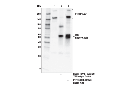 Immunoprecipitation of PTPRF/LAR from ACHN cell extracts. Lane 1 is 10% input, lane 2 is Rabbit (DA1E) mAb IgG XP<sup>®</sup> Isotype Control #3900, and lane 3 is PTPRF/LAR (E6W4X) Rabbit mAb. Western blot was performed using PTPRF/LAR (E6W4X) Rabbit mAb. Anti-rabbit IgG, HRP-linked Antibody #7074 was used as a secondary antibody.