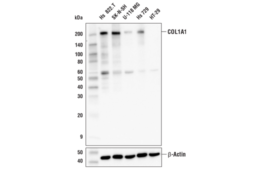 Western blot analysis of extracts from various cell lines using COL1A1 (E8I9Z) XP<sup>®</sup> Rabbit mAb (upper) and β-Actin (D6A8) Rabbit mAb #8457 (lower).