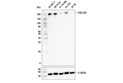 Western blot analysis of extracts from various cell lines using COL1A1 (E6A8E) Rabbit mAb (upper) and β-Actin (D6A8) Rabbit mAb #8457 (lower).
