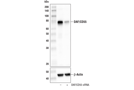 Western blot analysis of extracts from HeLa cells, mock transfected (-) or transfected with siRNA targeting human DAF/CD55 (+), using DAF/CD55 (E7G2U) XP<sup>®</sup> Rabbit mAb (upper) and β-Actin (D6A8) Rabbit mAb #8457 (lower).