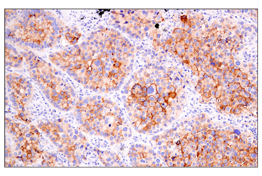 Immunohistochemical analysis of paraffin-embedded human lung adenocarcinoma using DAF/CD55 (E7G2U) XP<sup>®</sup> Rabbit mAb.