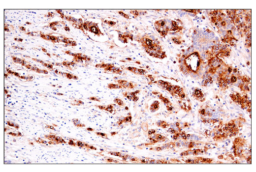 Immunohistochemical analysis of paraffin-embedded human colon carcinoma using DAF/CD55 (E7G2U) XP<sup>®</sup> Rabbit mAb.