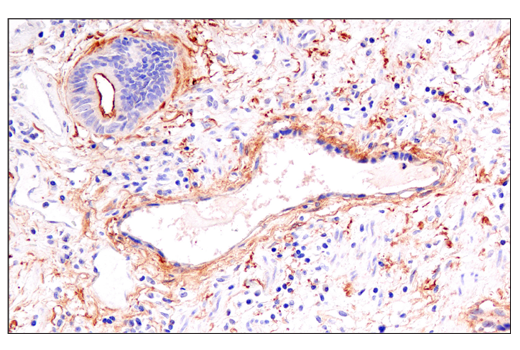 Immunohistochemical analysis of paraffin-embedded human esophageal carcinoma using DAF/CD55 (E7G2U) XP<sup>®</sup> Rabbit mAb.