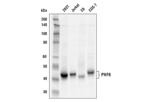 Polyclonal Antibody - PHF6 Antibody - Western Blotting, UniProt ID Q8IWS0, Entrez ID 84295 #44438 - Primary Antibodies