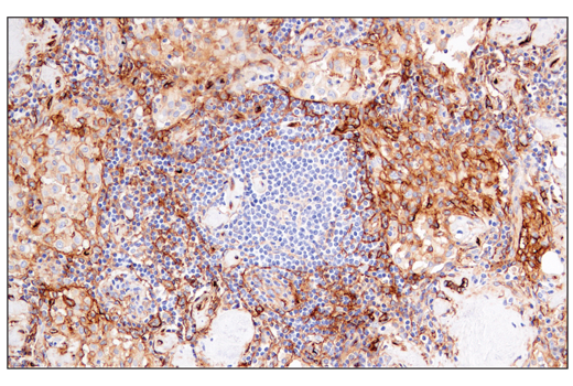 Immunohistochemical analysis of paraffin-embedded human lymph node using CD141/Thrombomodulin (E7Y9P) XP<sup>® </sup>Rabbit mAb.