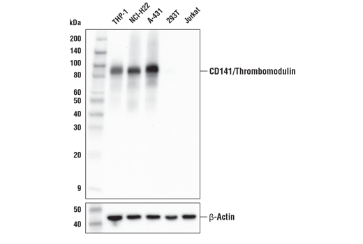 Western blot analysis of extracts from various cell lines using CD141/Thrombomodulin (E7Y9P) XP<sup>® </sup>Rabbit mAb (upper) or β-Actin (D6A8) Rabbit mAb #8457 (lower).