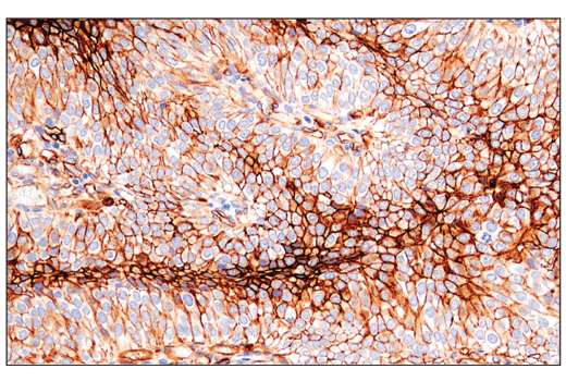 Immunohistochemistry Image 1: CD141/Thrombomodulin (E7Y9P) XP® Rabbit mAb
