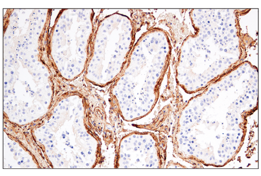 Immunohistochemistry Image 9: CD141/Thrombomodulin (E7Y9P) XP® Rabbit mAb