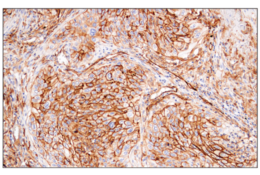 Immunohistochemical analysis of paraffin-embedded human squamous cell lung carcinoma using CD141/Thrombomodulin (E7Y9P) XP<sup>®</sup> Rabbit mAb.