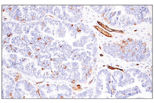 Immunohistochemistry Image 6: CD141/Thrombomodulin (E7Y9P) XP® Rabbit mAb