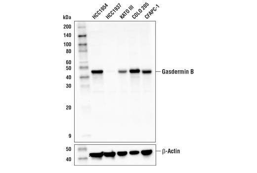 Polyclonal Antibody - Gasdermin B Antibody - Immunoprecipitation, Western Blotting, UniProt ID Q8TAX9, Entrez ID 55876 #76439 - Primary Antibodies