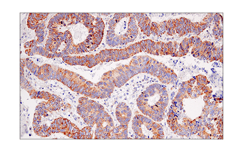Immunohistochemical analysis of paraffin-embedded human colon carcinoma using IDH2 (KrMab-3) Mouse mAb.