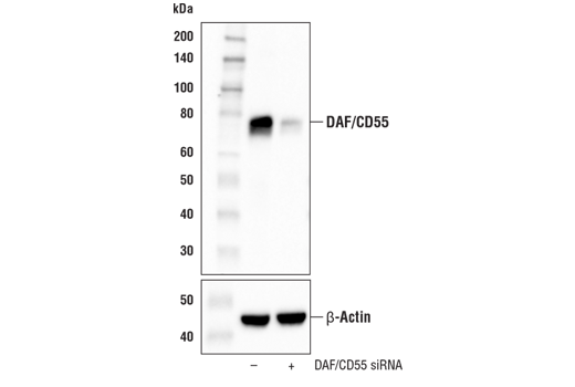 Western blot analysis of extracts from HeLa cells, mock transfected (-) or transfected with siRNA targeting human DAF/CD55 (+), using DAF/CD55 (E4G4T) Rabbit mAb (upper) and β-Actin (D6A8) Rabbit mAb #8457 (lower).