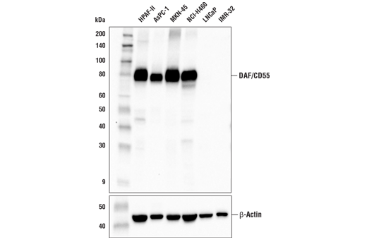 Western blot analysis of extracts from various cell lines using DAF/CD55 (E4G4T) Rabbit mAb (upper) and β-Actin (D6A8) Rabbit mAb #8457 (lower). As expected, DAF/CD55 protein expression is not detected in either LNCaP or IMR-32 cells.
