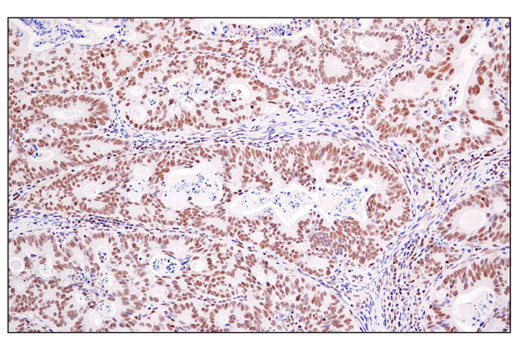 Immunohistochemical analysis of paraffin-embedded human colon carcinoma using DEK (E4S5J) Rabbit mAb.