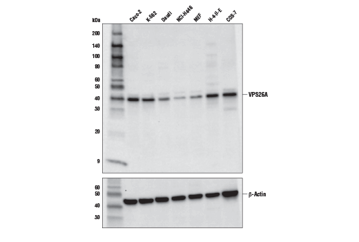 Western blot analysis of extracts from various cell lines using VPS26A Antibody (upper) and β-Actin (D6A8) Rabbit mAb #8457 (lower). Expression levels of VPS26A among cell lines are consistent with expectations based on publicly available bioinformatic databases.