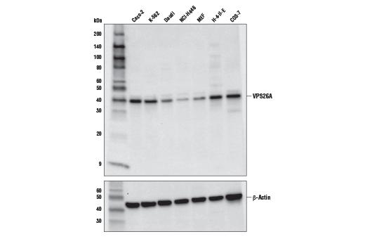 Polyclonal Antibody - VPS26A Antibody - Western Blotting, UniProt ID O75436, Entrez ID 9559 #75357 - Protein Folding and Trafficking