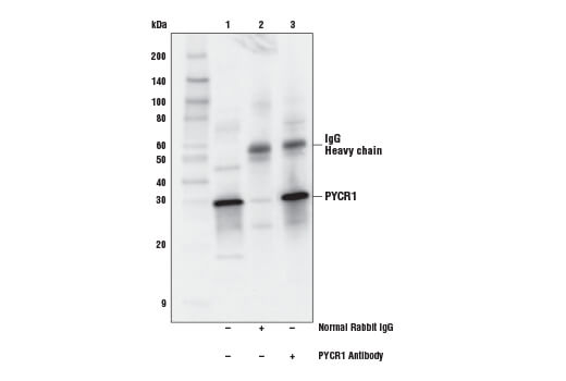 Immunoprecipitation of PYCR1 from Hep G2 extracts. Lane 1 is 10% input, lane 2 is Normal Rabbit IgG #2729, and lane 3 is PYCR1 Antibody. Western blot analysis was performed using PYCR1 Antibody. Anti-rabbit IgG, HRP-linked Antibody #7074 was used as the secondary antibody.