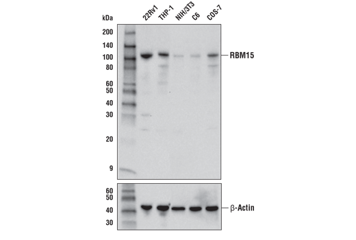 Western blot analysis of extracts from various cell lines using RBM15 Antibody (upper) and β-Actin (D6A8) Rabbit mAb #8457 (lower).