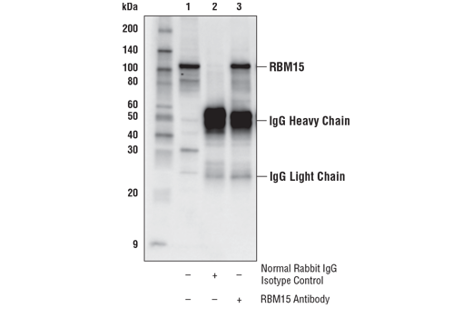 Immunoprecipitation of RBM15 from 22Rv1 cell extracts. Lane 1 is 10% input, lane 2 is Normal Rabbit IgG #2729, and lane 3 is RBM15 Antibody. Western blot analysis was performed using RBM15 Antibody. Anti-rabbit IgG, HRP-linked Antibody #7074 was used as a secondary antibody.