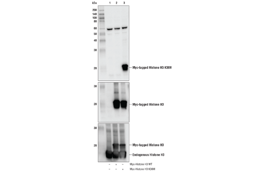 Western blot analysis of extracts from 293T cells, either mock transfected (-) or transfected (+) with Myc-tagged wild-type histone H3 (Myc-Histone H3 WT) or Myc-tagged K36M mutant histone H3 (Myc-Histone H3 K36M), using Histone H3 (K36M Mutant Specific) Antibody (upper), Myc-Tag (71D10) Rabbit mAb #2278 (middle), and Histone H3 (D1H2) XP<sup>®</sup> Rabbit mAb #4499 (lower). As expected, the Histone H3 (K36M Mutant Specific) Antibody only detects the Myc-tagged K36M mutant histone H3 protein and not the Myc-tagged wild-type histone H3 or endogenous wild-type histone H3 proteins. This antibody does detect endogenous levels of K36M mutant histone H3 protein.